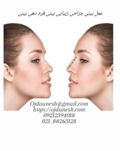 عمل بینی جراحی زیبایی بینی فرم دهی بینی